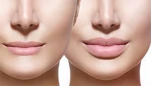 Контурная пластика губ: характеристика, эффективность, достоинства